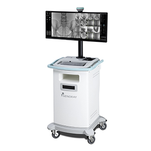 Genoray Oscar Classic C-Arm Monitor Cart